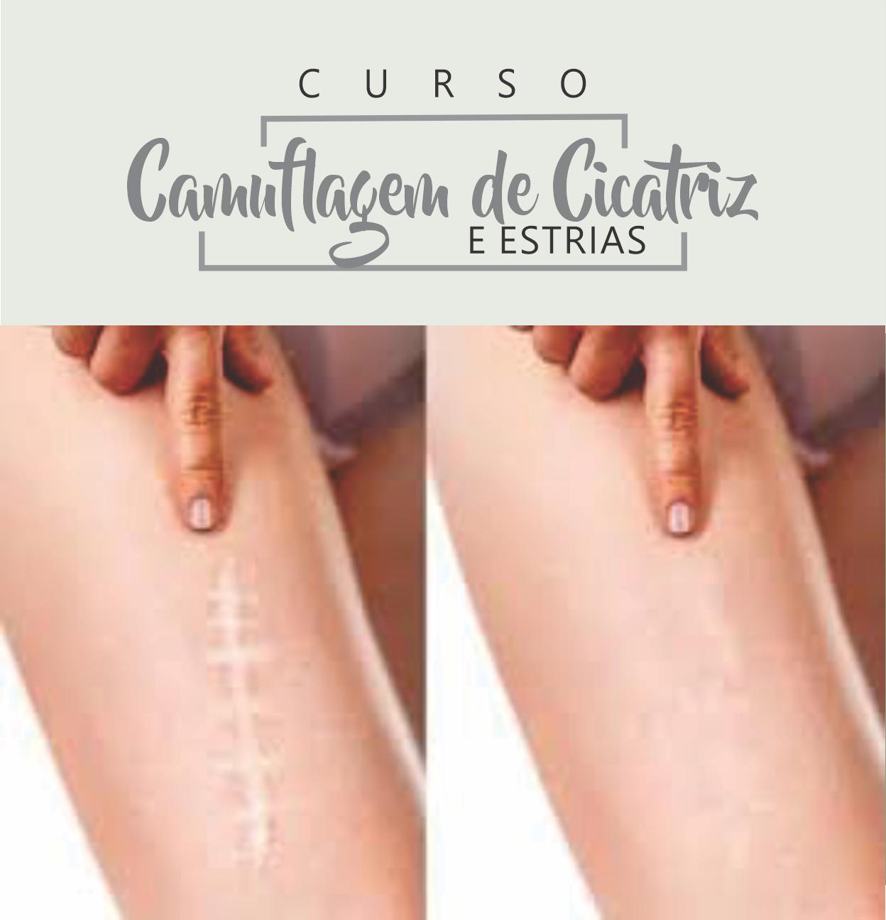 CAMUFLAGEM DE ESTRIAS E CICATRIZES